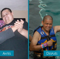 Diego - bariatric surgery - before and after