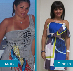 Isabel - manga gástrica - antes y después