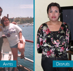 JESSICA TESTIMONY - bariatric surgery - before and after
