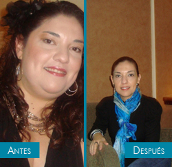 Miroslava testimony - bariatric surgery - before and after