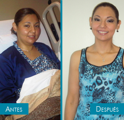 Monica - bariatric surgery - before and after