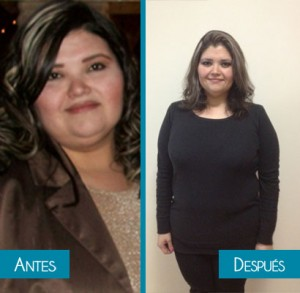 Rosy - bariatric surgery - before and after