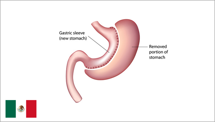 Gastric Sleeve Mexico