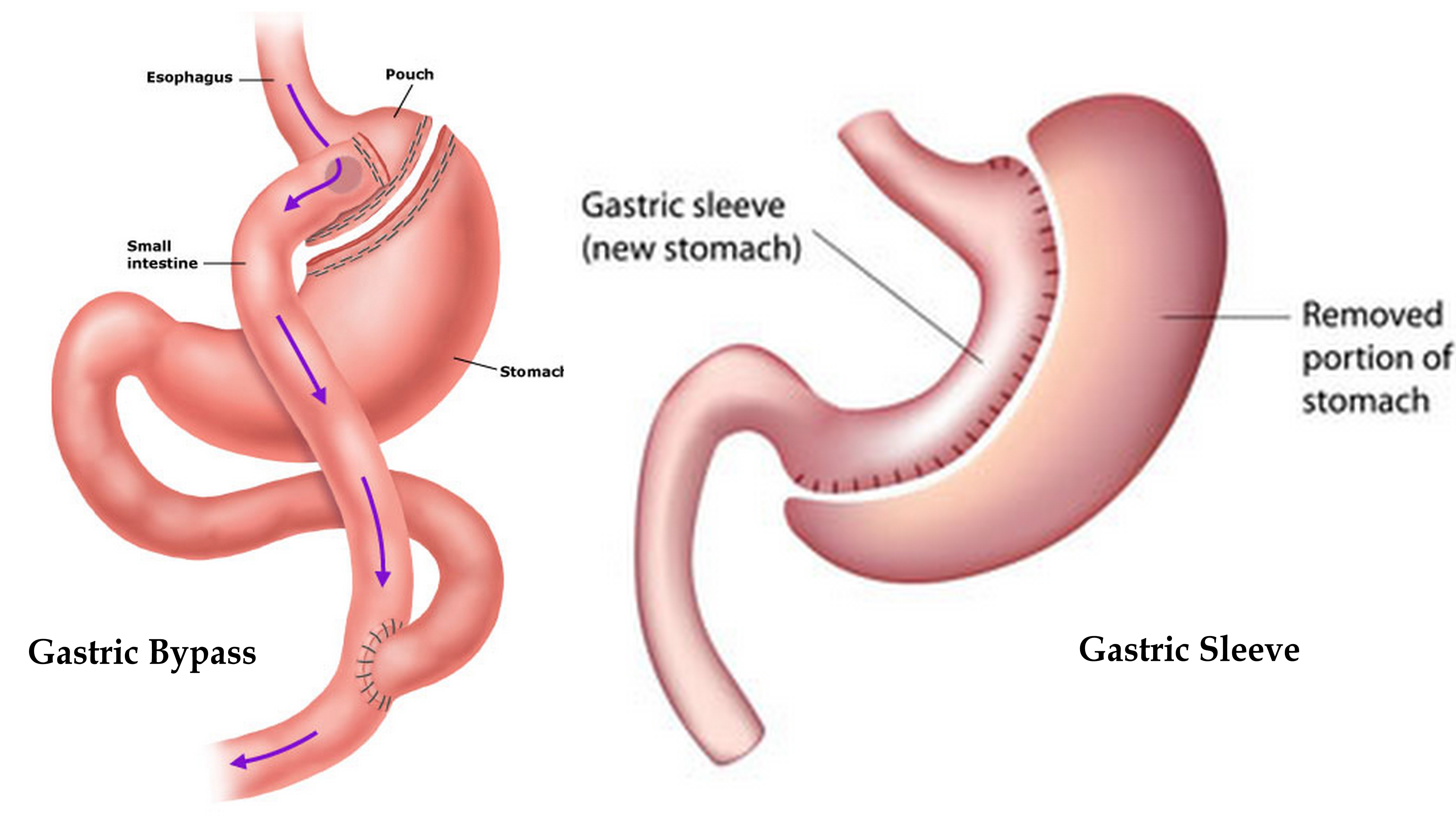 Gastric Sleeve versus Bypass