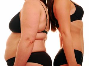 obesidad morbida