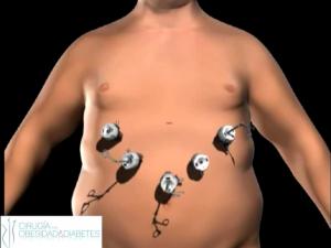 manga gastrica laparoscopica